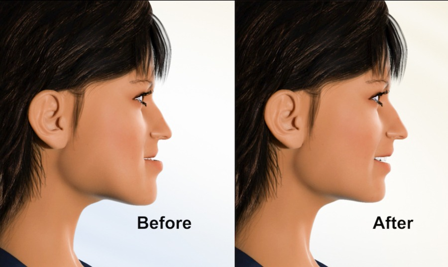 Jaw Surgery at Atlas Orthodontics